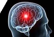 Le cerveau malade