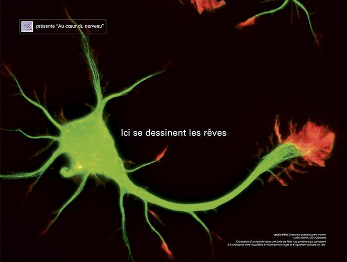 cerveau-eclats